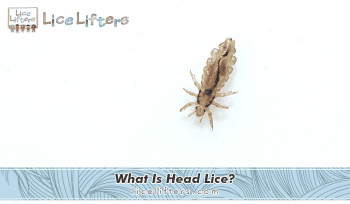 What Is Head Lice? 2020
